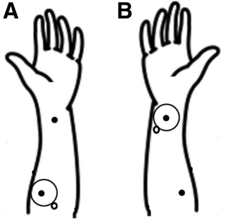 Hände OGKA Akupunktur