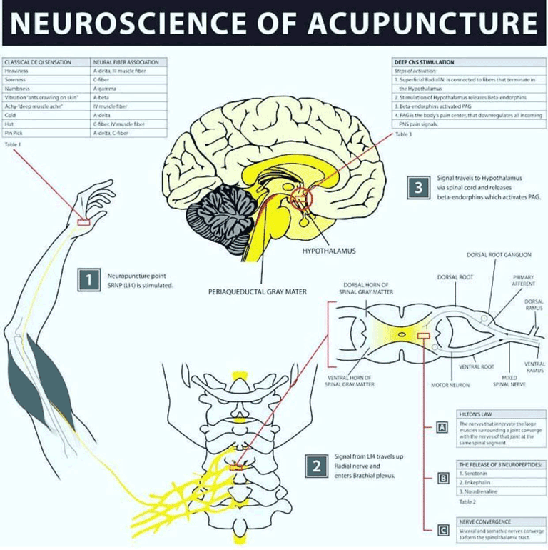 Neuroscience of Acupuncture